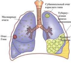 Статистика заболеваемости туберкулезом в рт