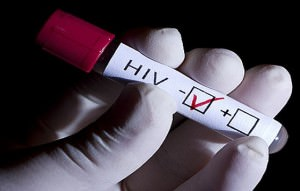 Проверка на СПИД в Одессе