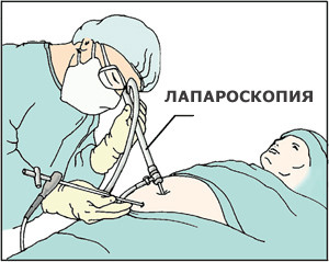 Лапароскопическая холецистэктомия или лапароскопия желчного пузыря
