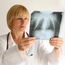 Несколько интересных фактов об туберкулезе