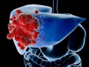 Рак печени у мужчин встречается чаще