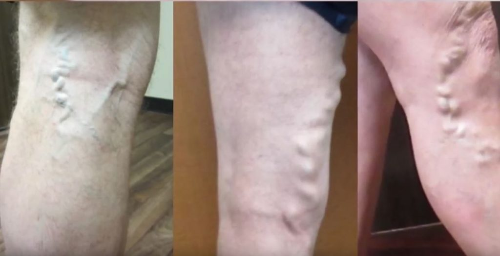 Примеры варикоза